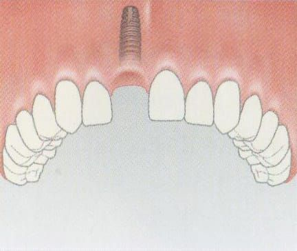 The implant is inserted into the jawbone without affecting adjacent teeth