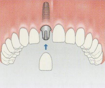 The abutment is attached to the implant before the crown can be cemented/screwed into place