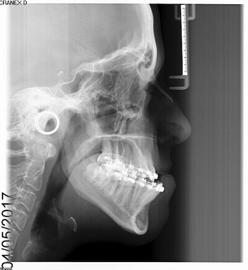 Lateral Cephalogram pre-op.