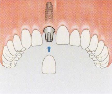 Replacing a single tooth - avoiding the need to grind down adjacent teeth as for conventional crowns and bridges