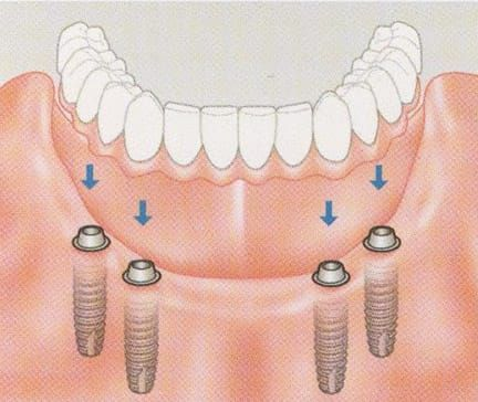 Multiple Implants can be used to anchor dentures so they are more fixed in your mouth and less likely to cause rubbing and soreness