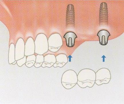 Multiple implants can be used to provide support for a bridge especially on back teeth which require greater loading due to grinding forces