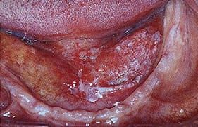 Floor of mouth cancer
