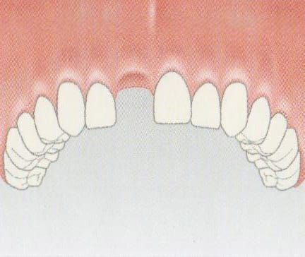 A single missing front tooth can easily be replaced with an implant